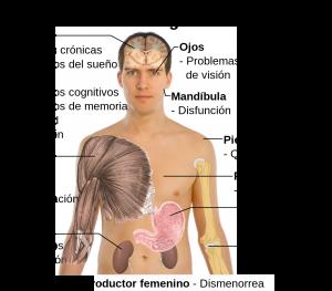 como funciona la fibromialgia