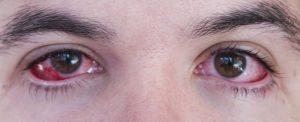 Ojos con conjuntivis