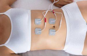 Electrodos de estimulación abdominal