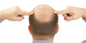 como saber si tengo alopecia